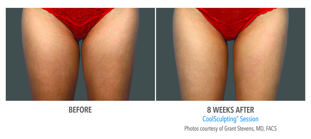 CoolSculpting -- Thighs
